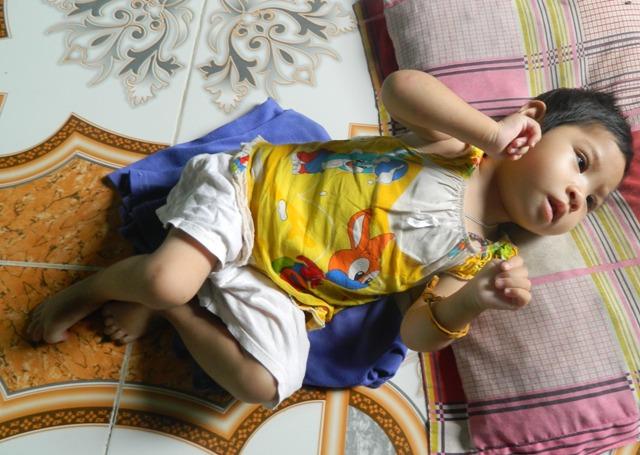 Vì sao bệnh động kinh xuất hiện ở trẻ em