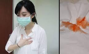 Ung thư phổi chẩn đoán và các phương pháp điều trị