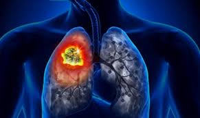 Ung thư phổi triệu chứng và phân loại