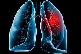 Ung thư phổi nguyên nhân và các yếu tố nguy cơ.