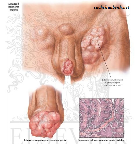 ung thư dương vật