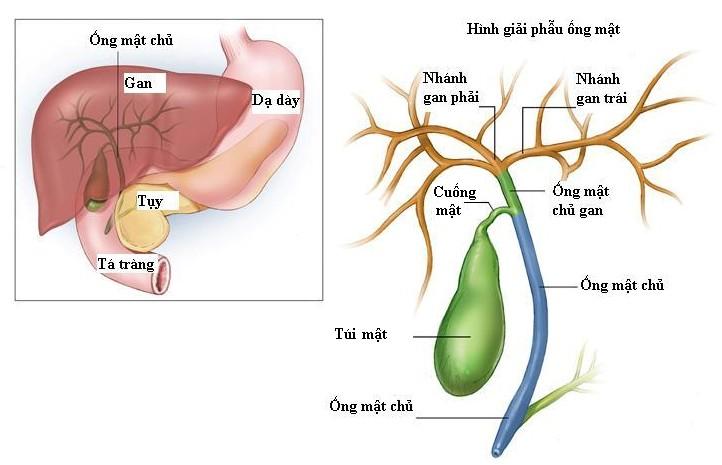ung thư túi mật